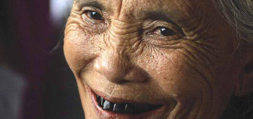 سیاه شدن دندان
