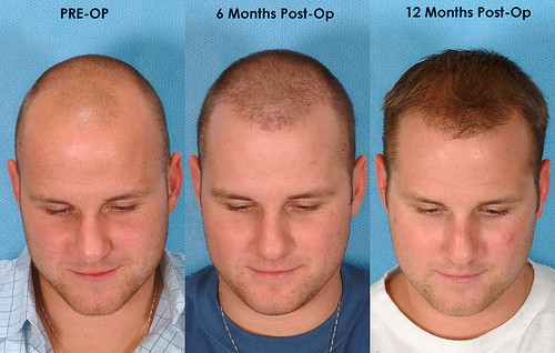 قبل و بعد از کاشت مو