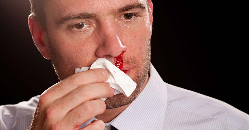 پیشگیری از خون دماغ شدن و علتهای بروز آن